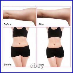 40K Cavitation Ultrasonic Body Slimming Machine RF Face Lifting Cellulite Remove