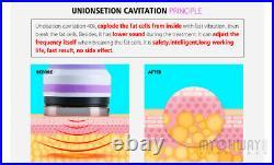 5 IN 1 Ultrasonic Cavitation Vacuum RF Skin Whitening Fat Remover Beauty Machine