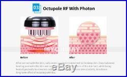 7 in 1 Ultrasonic Cavitation Radio Frequency Slim Machine Vacuum Body fat burner