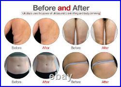 Pro Cryo Cavitation Fat Freeze Body Contouring Laser Lipolysis Slimming Machine